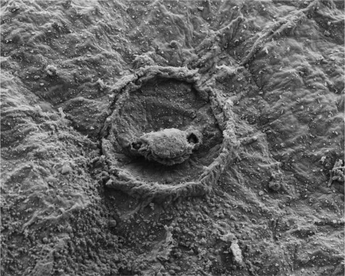 Scanning electron microscopy displaying the epithelial topography of the push-rod receptors found along anterior and posterior sections of the remora disc lip. Credit: NJIT, FHL-UW, GWU.
